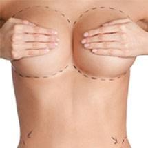 Studio Grasso chirurgia estetica